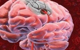 Стволовые клетки могут стать основной терапией в лечении инсульта