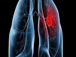 Разработаны лекарства для лечения запущенного рака легких
