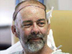 Врачи провели первую операцию по пересадке черепа