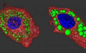 Найдены две мутации, вызывающие диабет и ожирение