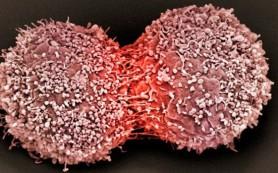 Ученые разрабатывают революционный метод лечения рака