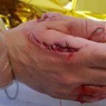 Испания: Акула напала на туриста на пляже Аликанте