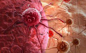 Лекарственное средство от меланомы успешно проходит испытания на людях