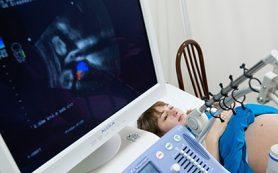 ФАС оштрафует Bayer за пугавшую беременных рекламу