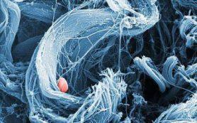 Трансплантацию тканей усовершенствовали хитозаном