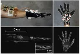 Инженеры разработали МРТ-перчатку