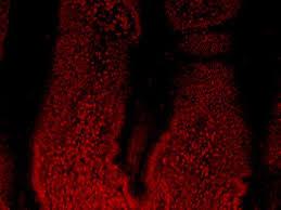 Голод омолаживает стволовые клетки