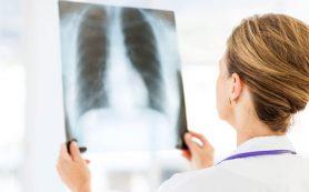Пневмония легких – серьезная патология!