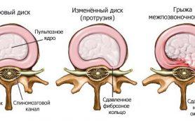 Грыжа межпозвоночного диска. Лечение