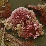 Онкодиагностику улучшают «магнитным белком»