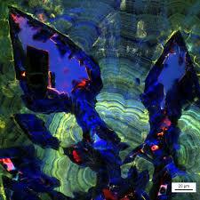 Почечные камни растут, как обычные минералы
