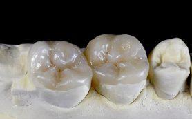 «Зуб нужно покрыть коронкой»- как понять, что Вам предлагает стоматолог