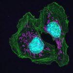 Мутантные клетки не дают друг другу превратиться в опухоль