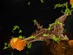 Сложность коронавирусной инфекции может зависеть от иммунных сетей