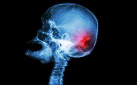 Пока не поздно: как распознать опухоли головы и шеи