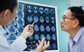 Опасные изменения мозга в среднем возрасте связаны с бессимптомными поражениями сердца и сосудов